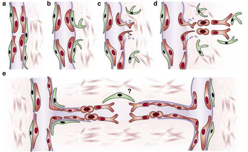 New-blood-vessel-formation