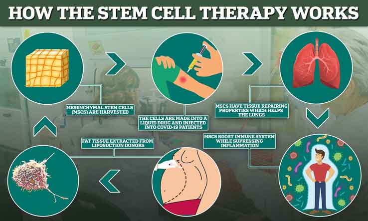 how stem cell therapy in palm beach works